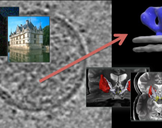 Image and video processing From Mars to Hollywood with a stop at the hospital
